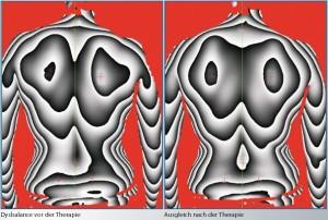 Rückenscan1